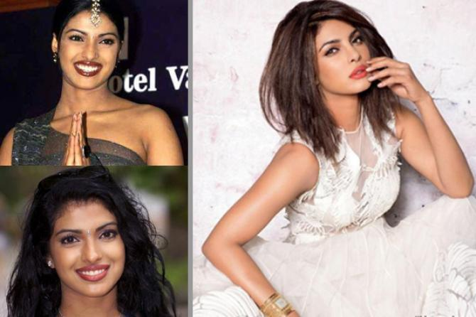 Priyanka Chopra skin whitening before after