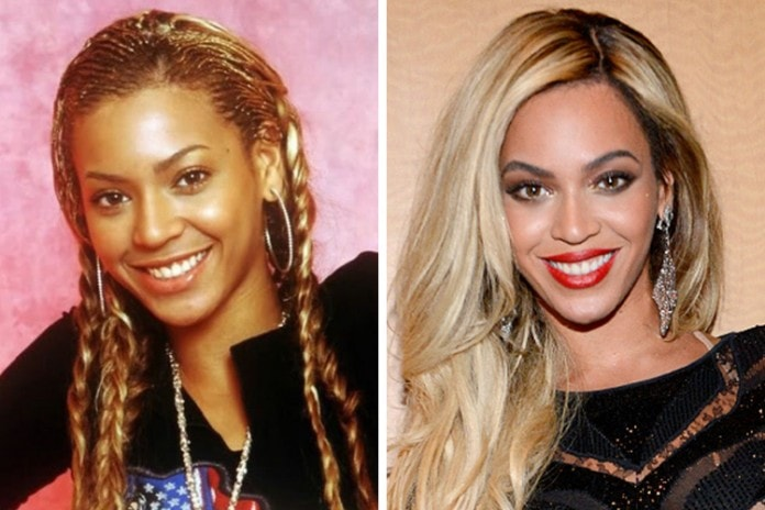 Beyonce Knowles before and after skin whitening