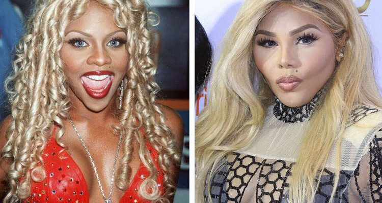 lil kim skin whitening before after
