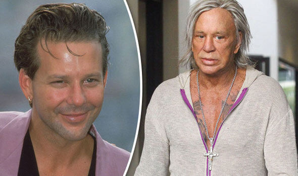 Mickey Rourke before after plastic surgery