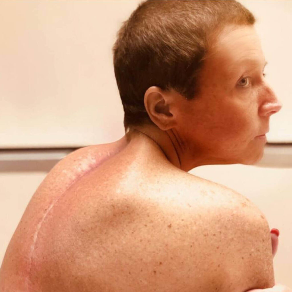 abby lee miller spinal surgery scar 1
